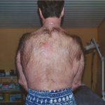 Behandlungsbeginn Epilation Rücken